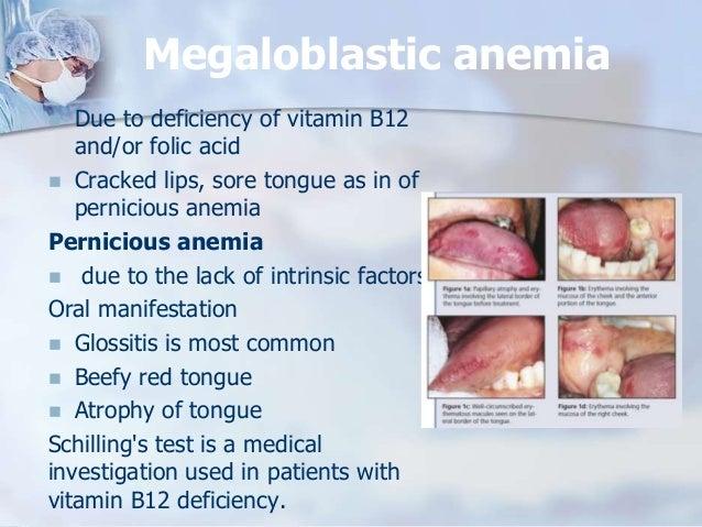 Periomedi copy B12 Deficiency Tongue