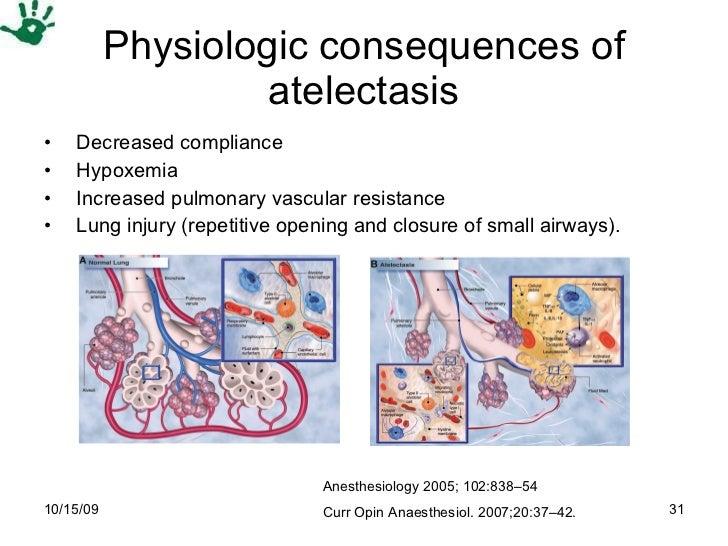 Physiologic consequences of atelectasis <ul><li>Decreased compliance </li></ul><ul><li>Hypoxemia </li></ul><ul><li>Increas...