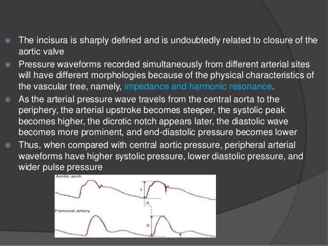 A Line Arterial Monitoring : Hemodynamic monitoring thoracic key