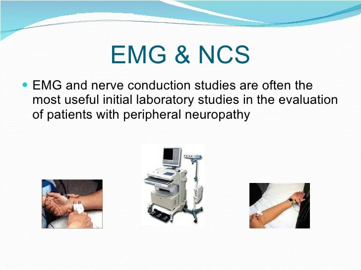 Nerve Conduction Velocity: Purpose, Procedure & Results