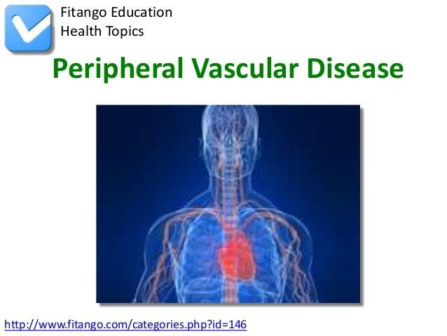 Fitango Education          Health Topics        Peripheral Vascular Diseasehttp://www.fitango.com/categories.php?id=146