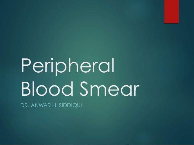 Peripheral Blood Smear DR. ANWAR H. SIDDIQUI