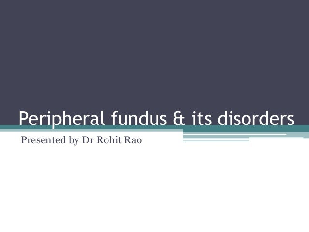 Peripheral fundus & its disorders Presented by Dr Rohit Rao