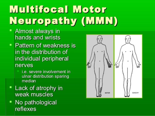 Sensory motor neuropathy profile for What is motor neuropathy