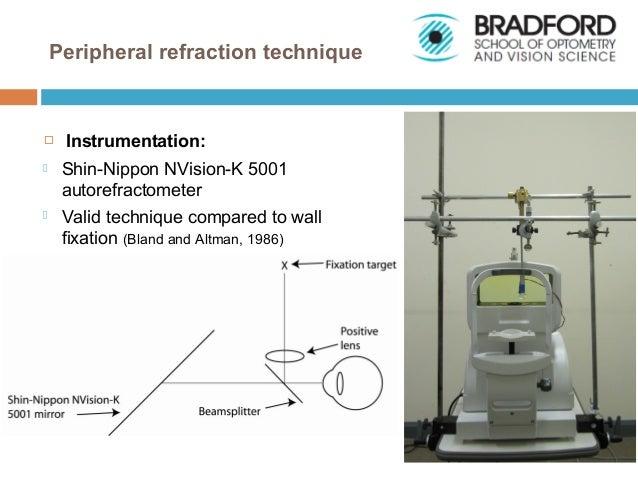Peripheral refraction in myopia
