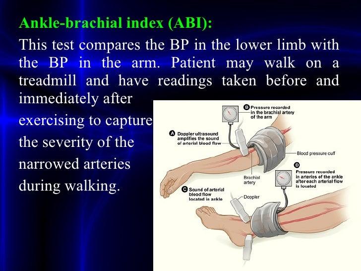 Peripheral Vascular Arterial Disease Ppt