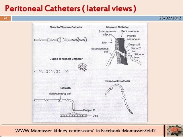 WWW.Montasser-kidney-center.com/ In Facebook :MontasserZeid2 Peritoneal Catheters ( lateral views ) 22 25/02/2012