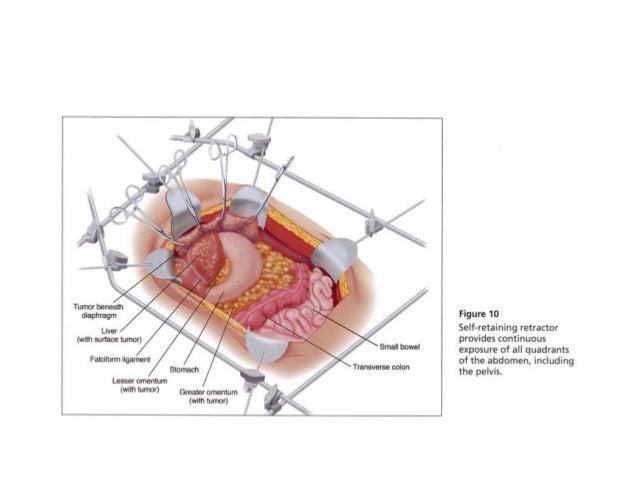 peritoneal karsinomatosiz  hipec eus