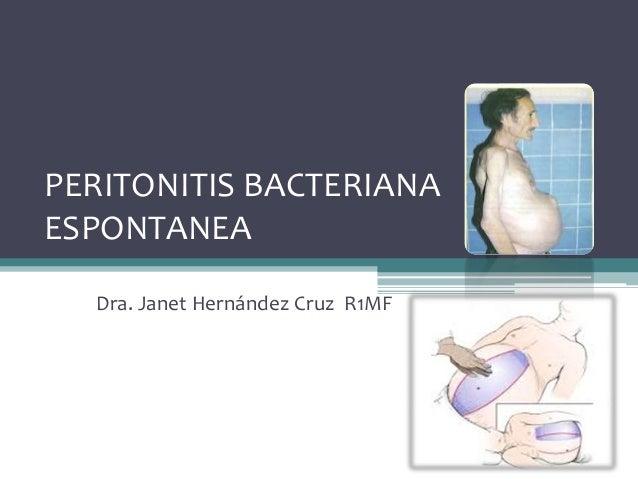 PERITONITIS BACTERIANA ESPONTANEA Dra. Janet Hernández Cruz R1MF