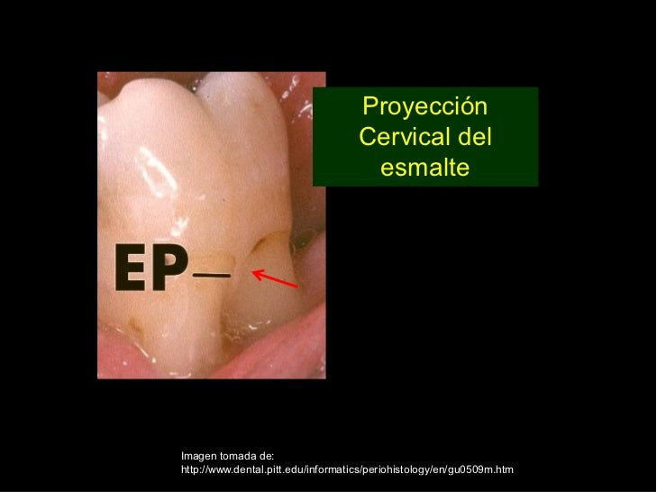 Perla Del Esmalte