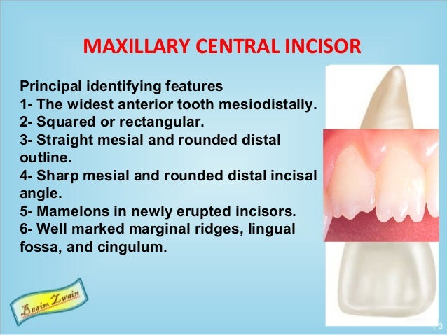 Permanent maxillary incisors Slide 3