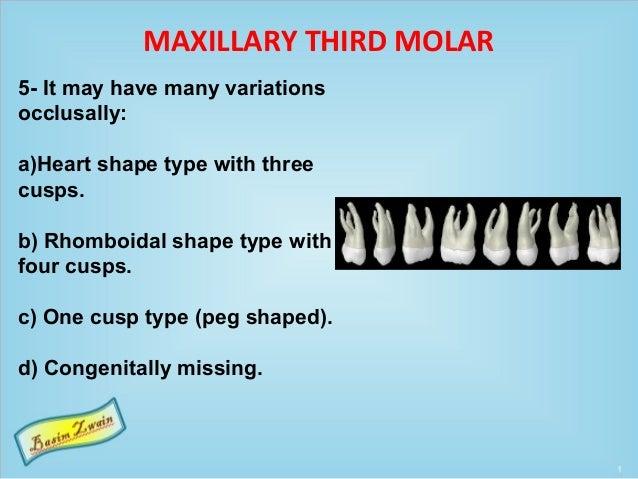 MAXILLARY THIRD MOLAR 5- It may have many variations occlusally: a)Heart shape type with three cusps. b) Rhomboidal shape ...