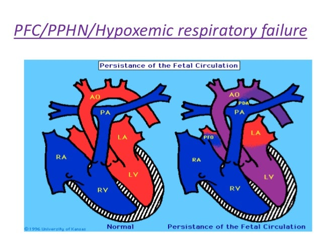 Persistent pulmonary hypertension of the newborn