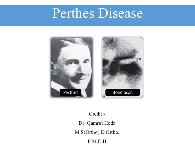 Perthes Disease Credit - Dr. Qamrul Hoda M.S(Ortho),D.Ortho. P.M.C.H Perthes Bone Scan