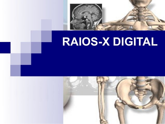 RAIOS-X DIGITAL