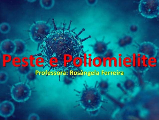 Peste e PoliomieliteProfessora: Rosângela Ferreira