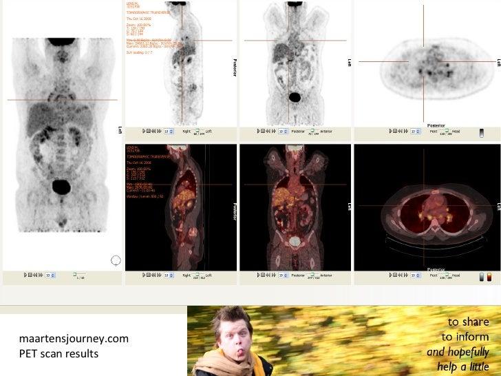 maartensjourney.com  PET scan results