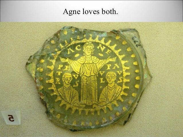 Agne loves both.