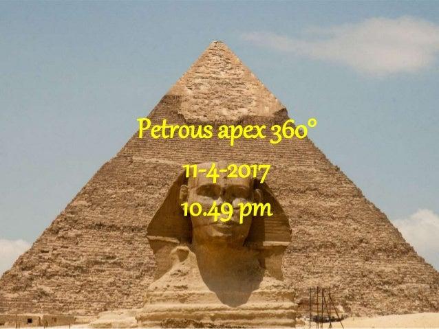 Petrous apex 360° 11-4-2017 10.49 pm