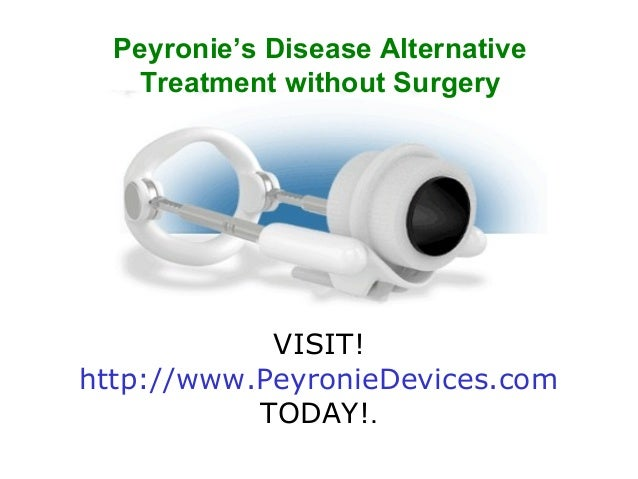 Peyronie's Disease Alternative   Treatment without Surgery            VISIT!http://www.PeyronieDevices.com           TODAY!.