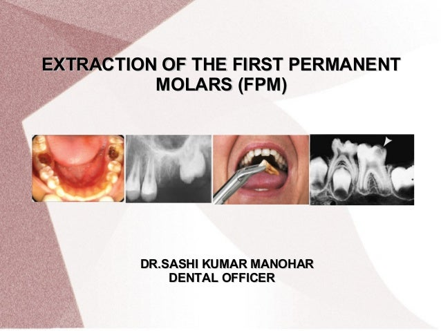 EXTRACTION OF THE FIRST PERMANENTEXTRACTION OF THE FIRST PERMANENT MOLARS  (FPM)MOLARS (FPM ...