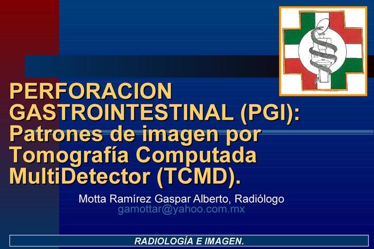 Motta Ramírez Gaspar Alberto, Radiólogo [email_address] RADIOLOGÍA E IMAGEN. PERFORACION GASTROINTESTINAL (PGI): Patrones ...