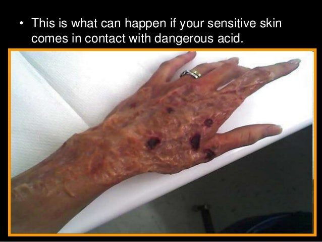 how to tell if acid is real