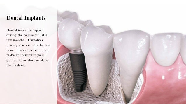 Dental Implants Dental implants happen during the course of just a few months. It involves placing a screw into the jaw bo...