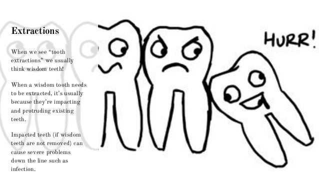 """Extractions When we see """"tooth extractions"""" we usually think wisdom teeth! When a wisdom tooth needs to be extracted, it's..."""