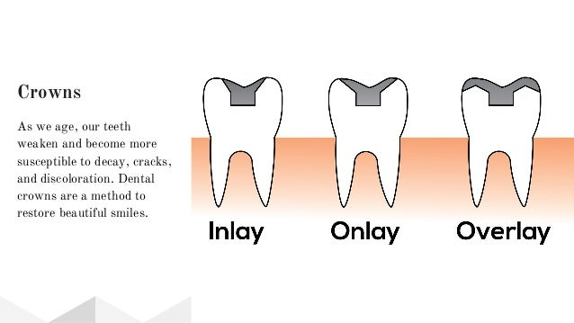 Crowns As we age, our teeth weaken and become more susceptible to decay, cracks, and discoloration. Dental crowns are a me...