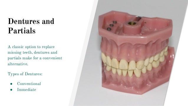 Dentures and Partials A classic option to replace missing teeth, dentures and partials make for a convenient alternative. ...