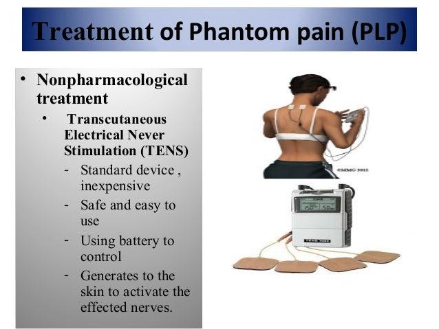 Phantom limb treatment Slide 14