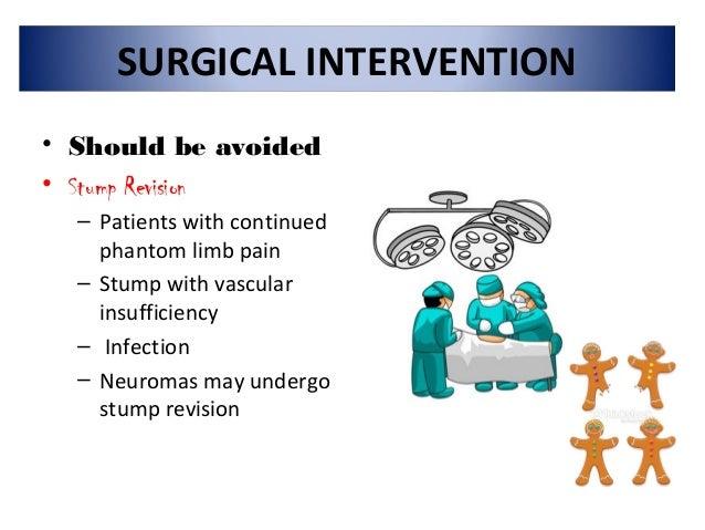 Phantom limb treatment Slide 17