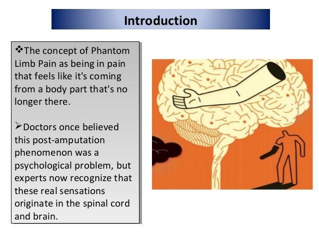 Phantom limb treatment Slide 3