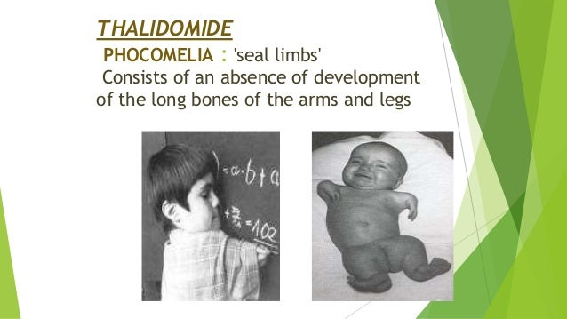 THALIDOMIDE PHOCOMELIA : 'seal limbs' Consists of an absence of development of the long bones of the arms and legs