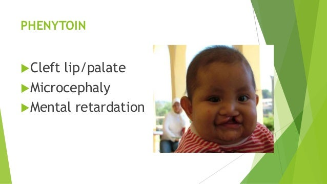 PHENYTOIN Cleft lip/palate Microcephaly Mental retardation