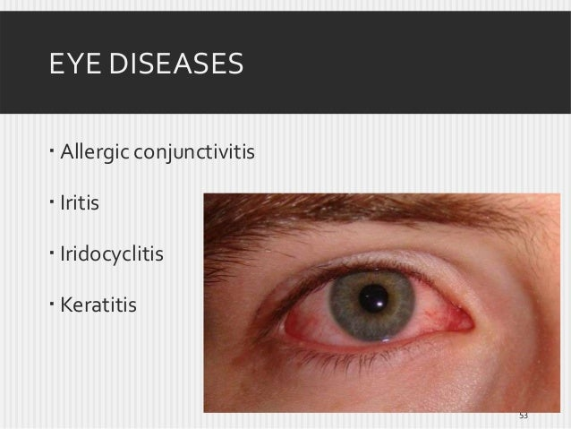EYE DISEASES  Allergic conjunctivitis  Iritis  Iridocyclitis  Keratitis  53