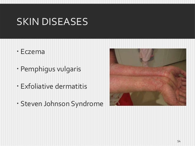 SKIN DISEASES  Eczema  Pemphigus vulgaris  Exfoliative dermatitis  Steven Johnson Syndrome  54