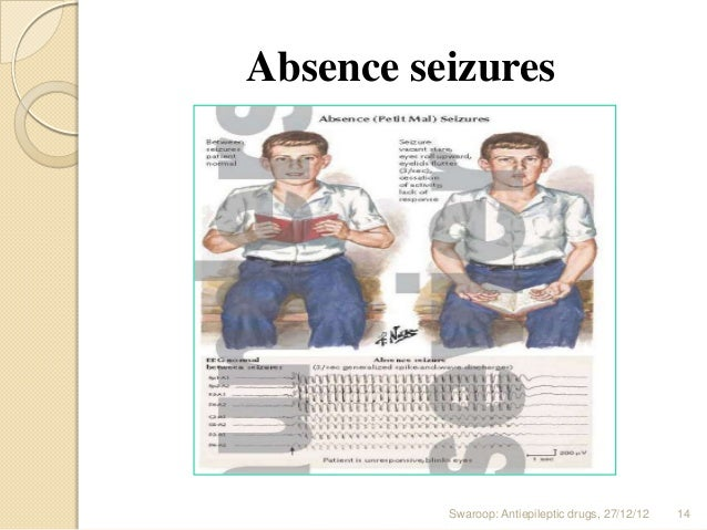 absence seizures in adults