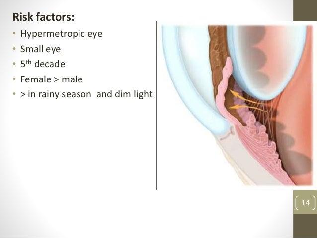 Risk factors: • Hypermetropic eye • Small eye • 5th decade • Female > male • > in rainy season and dim light 14
