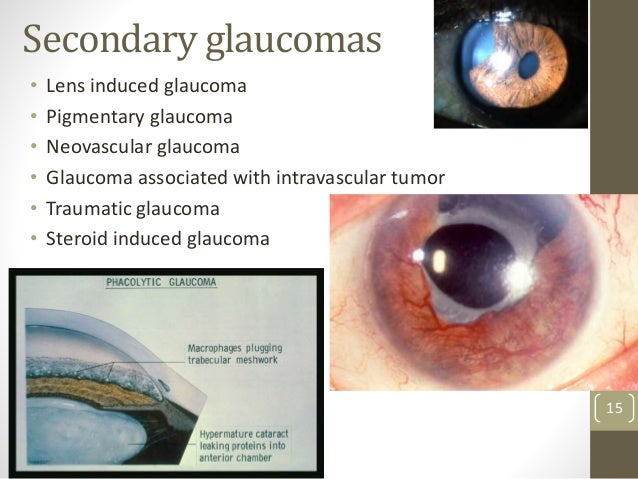 Secondary glaucomas • Lens induced glaucoma • Pigmentary glaucoma • Neovascular glaucoma • Glaucoma associated with intrav...