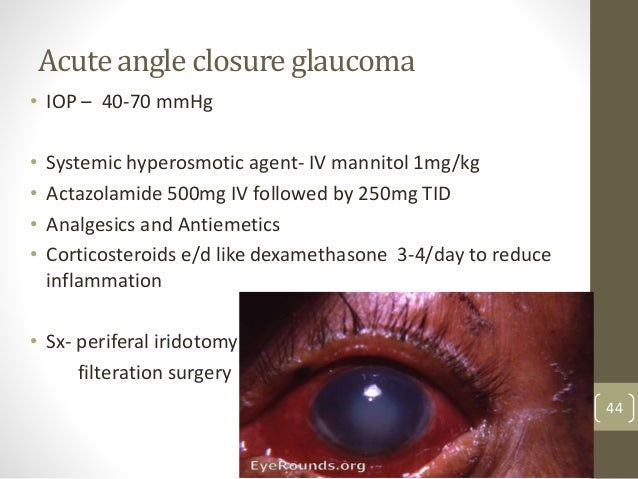 Acute angle closure glaucoma • IOP – 40-70 mmHg • Systemic hyperosmotic agent- IV mannitol 1mg/kg • Actazolamide 500mg IV ...
