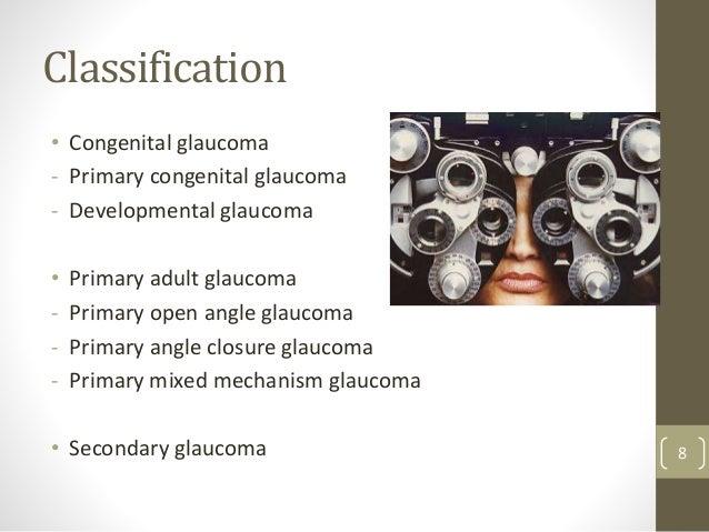 Classification • Congenital glaucoma - Primary congenital glaucoma - Developmental glaucoma • Primary adult glaucoma - Pri...