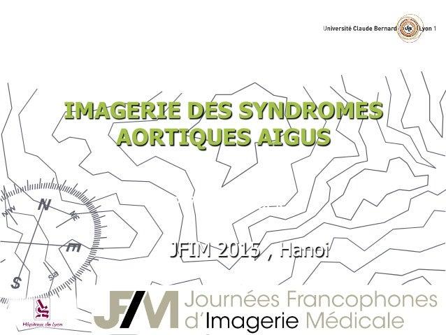 IMAGERIE DES SYNDROMES AORTIQUES AIGUS Pr Philippe Douek JFIM 2015 , Hanoi