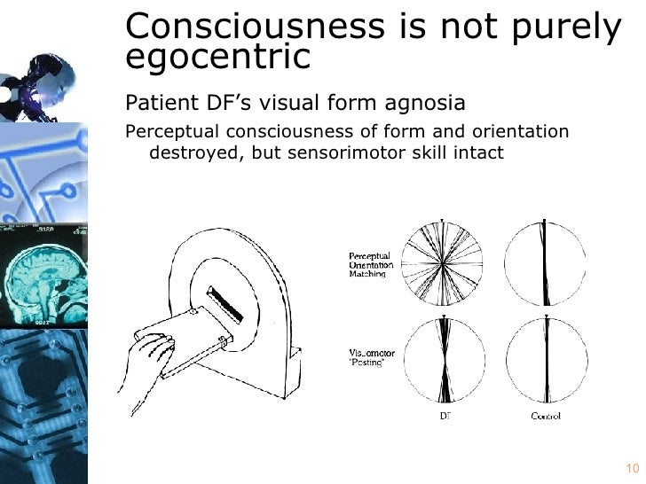 double dissociation optic ataxia and visual form agnosia These observations have been widely interpreted as demonstrating a double dissociation from optic ataxia  in contrast, in addition to visual form agnosia.