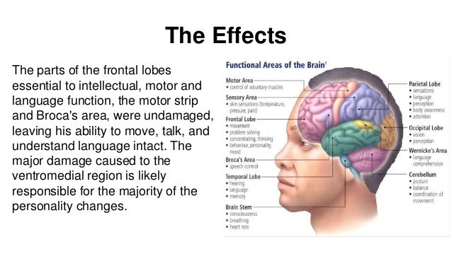 Damaged frontal lobes