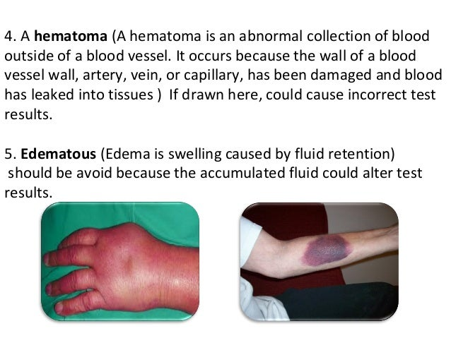 phlebotomy obtaining blood from a vein essay Reducing blood culture contamination rates: venipuncture,  environmental  contaminants) into the sample of blood obtained for  the three practices being  evaluated in this review are venipuncture, puncture of a vein  study quality  ratings in evidence summary tables for each of the 21 eligible studies.