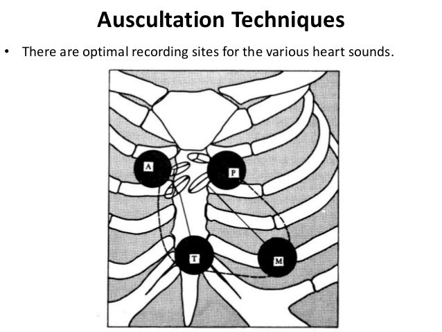 Auscultation Techniques • There are optimal recording sites for the various heart sounds.