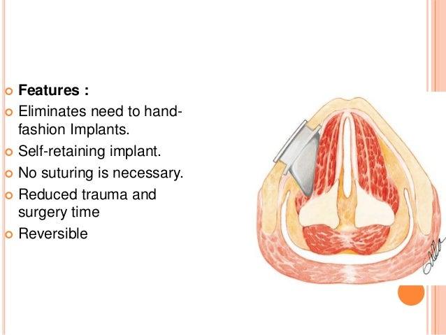 Medialisation thyroplasty - More information