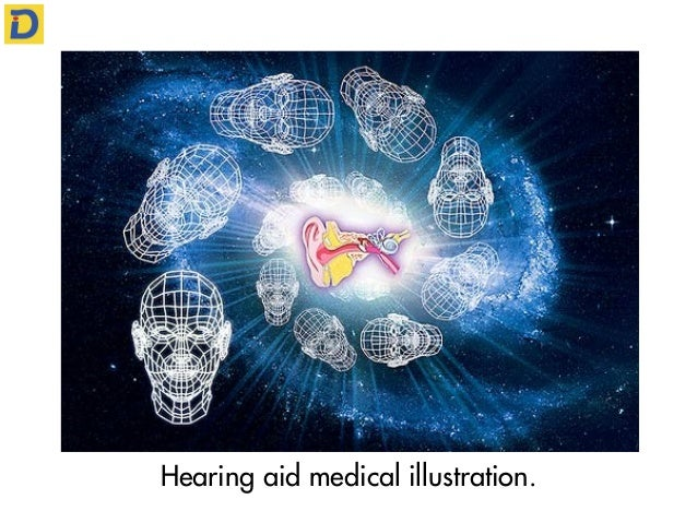 Hearing aid medical illustration.